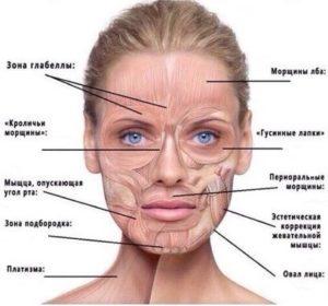 Применение Ботулотоксина типа А в терапевтической косметологии
